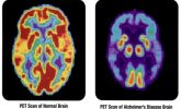 Does HRT increase the risk of Alzheimer's?